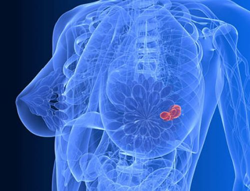 Breast Cancer – What Causes It?