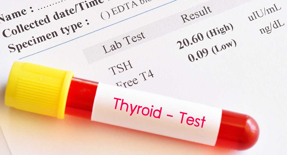 How To Read A Thyroid Blood Test