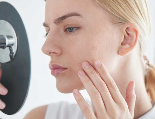 Case Study: Resolving Acne