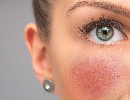 Case Study: Help For Acne Rosacea