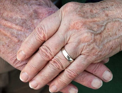 Do You Have Liver Spots (Age Spots)?